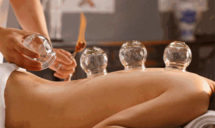 Cupping Therapy in Sherwood Park, AB
